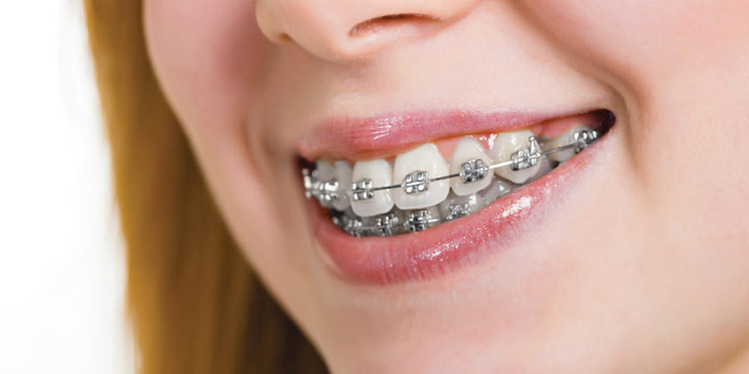 Orthodontic Bands and Metal Work
